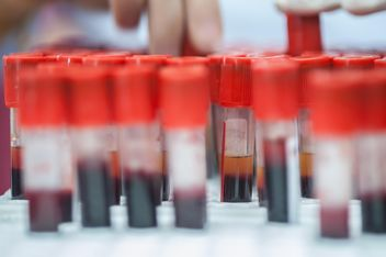 Blood check in Medical laboratory - Free image #186343