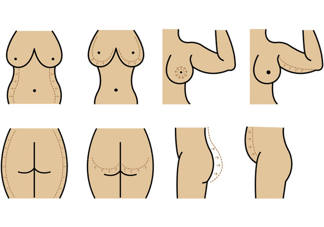 Set Of Plastic Surgery Vector - бесплатный vector #401813